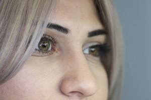 Prosthetic Eye Retinoblastoma