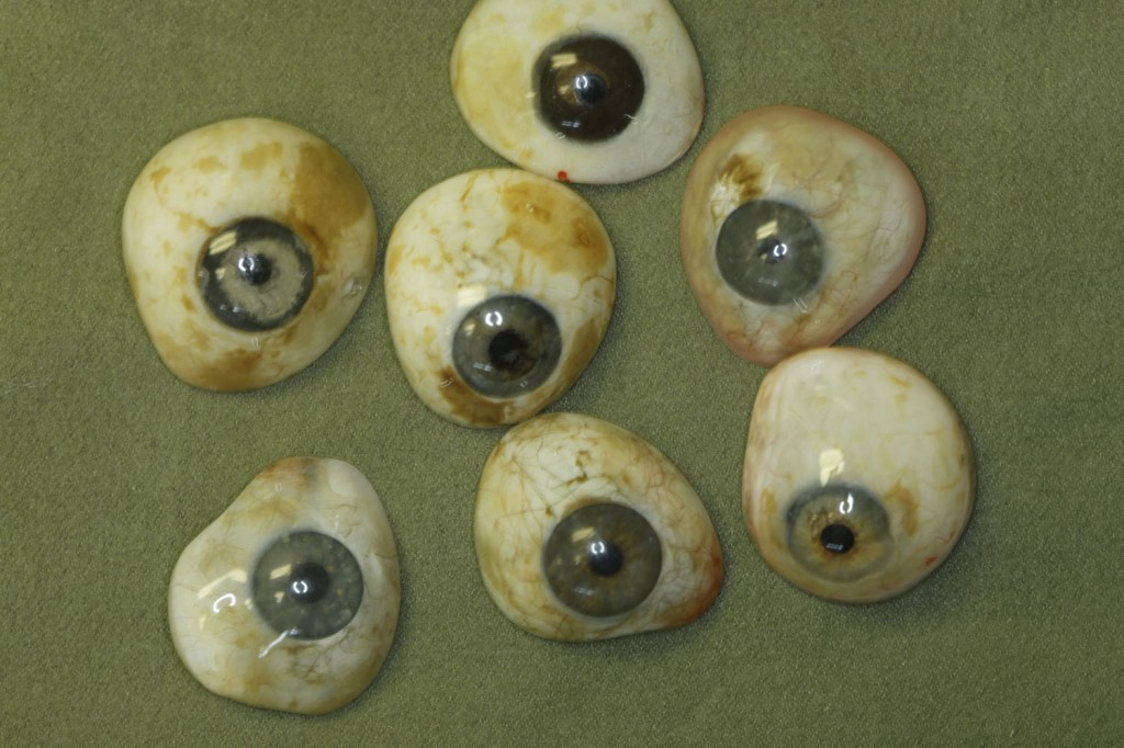 dirty artificial eyes Biannual cleanings of your prosthetic eye