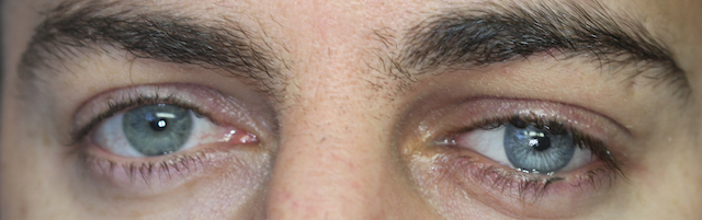 Ocular prosthetics ocularist competition