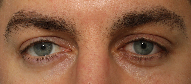 Ocular prosthetics for patient
